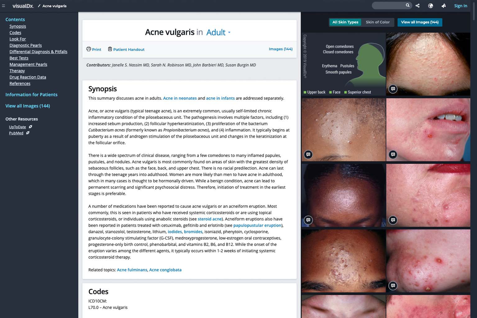 screenshot of search results for acne in VisualDx