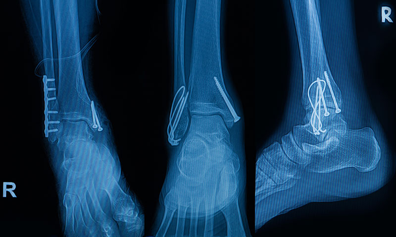 X-ray of a foot and ankle