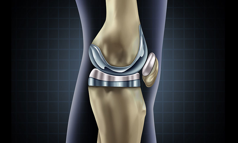 Illustration of an artificial knee