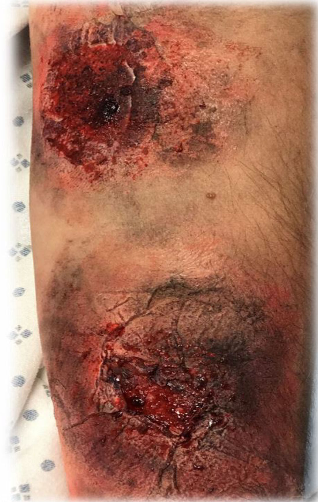 Moulage on arm