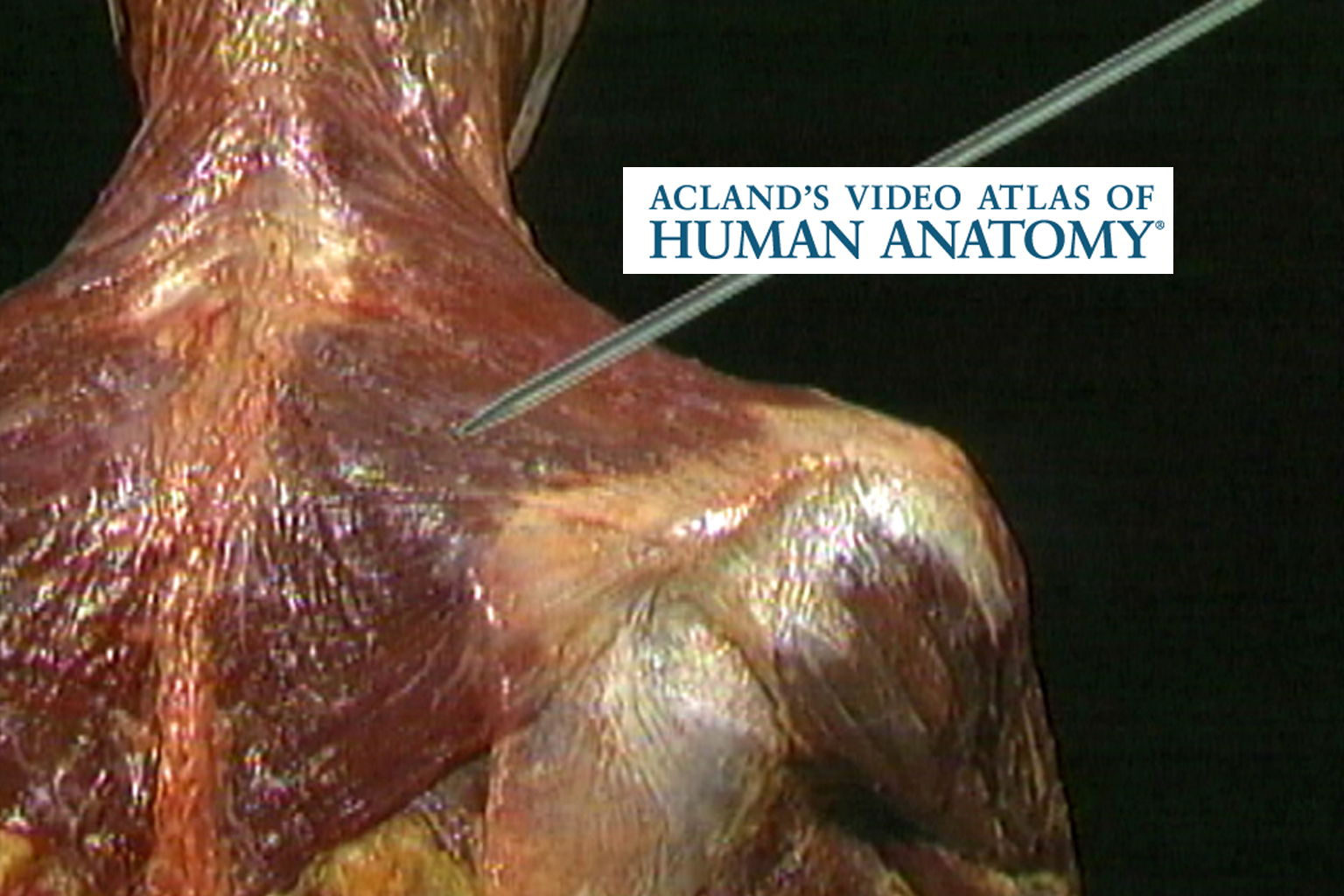 Illustration of shoulder muscles from Acland's video atlas of human anatomy